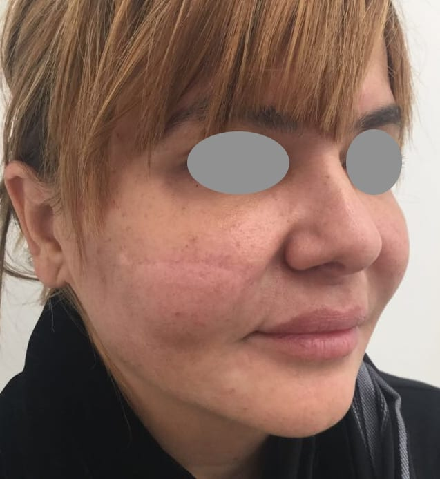Nose Thread Lift Infection