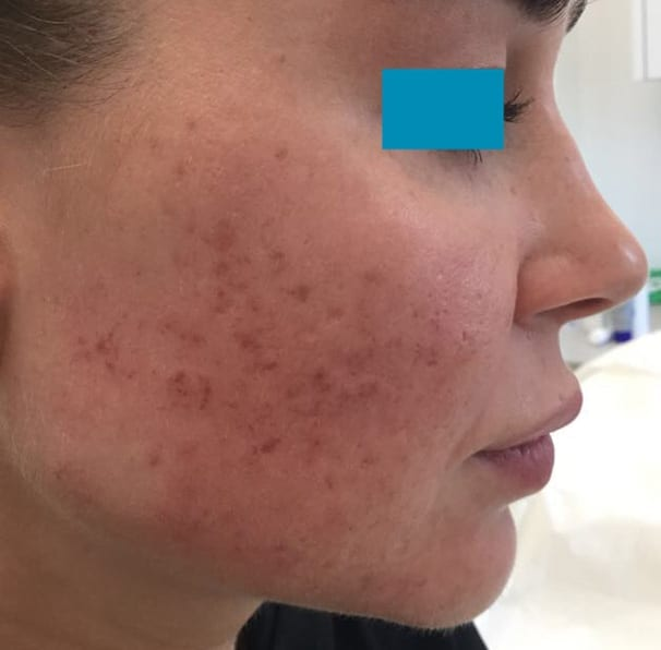 Laser Acne Treatment - Before 02