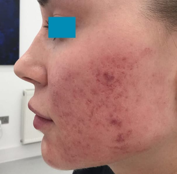 Laser Acne Treatment - Before 03