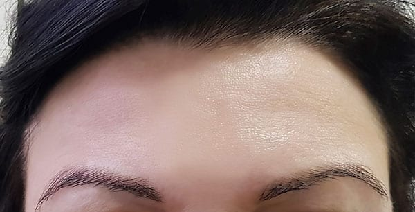 Botulinum Toxin Type A Treatment - After 01