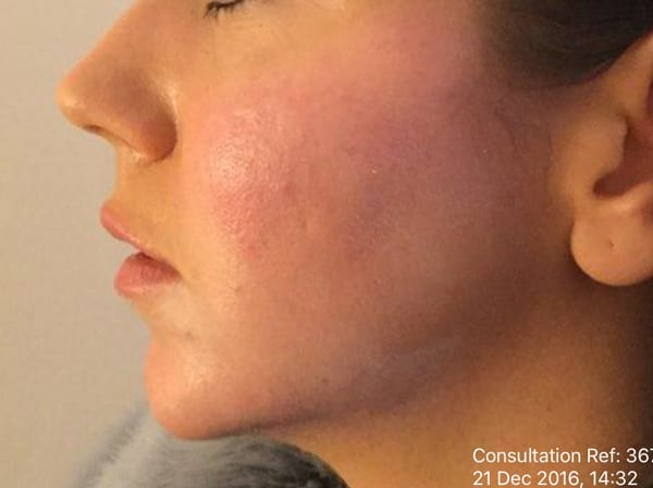 Dermal Fillers - Chin - After 01