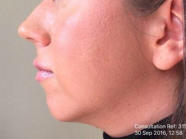 Dermal Fillers - Chin - Before 01