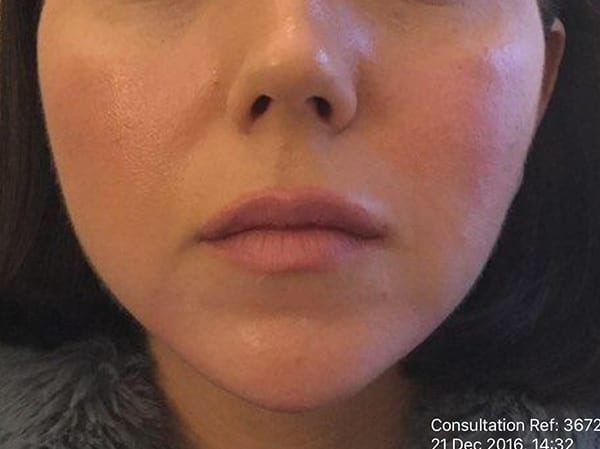 Dermal Fillers - Chin - After 02