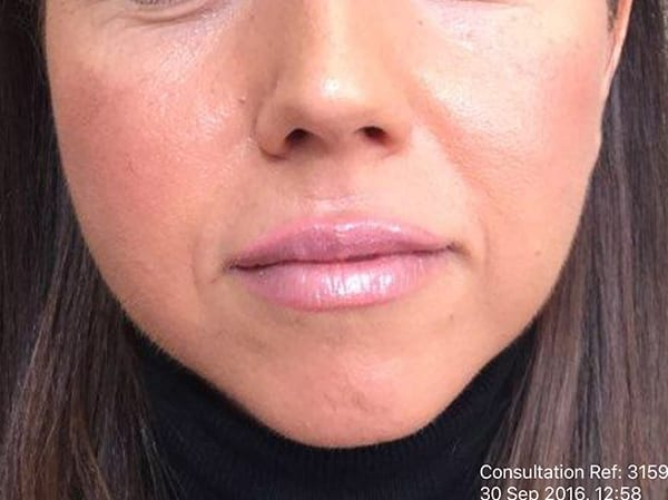 Dermal Fillers - Chin - Before 02