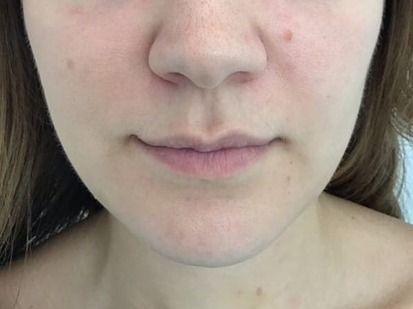 Dermal Fillers - Lips - Before 01