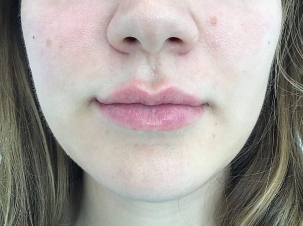 Dermal Fillers - Lips - After 01