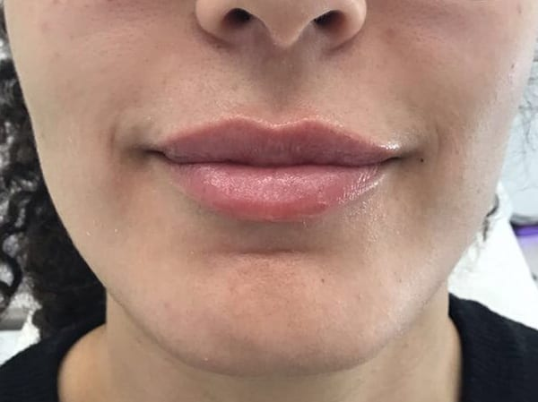 Dermal Fillers - Lips - After 02