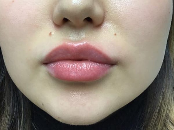 Dermal Fillers - Lips - After 03