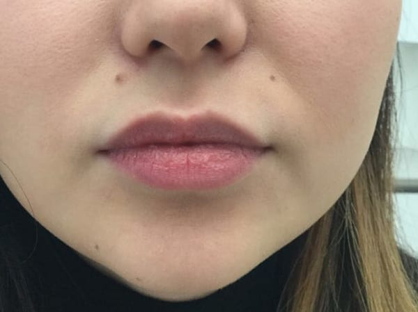 Dermal Fillers - Lips - Before 03