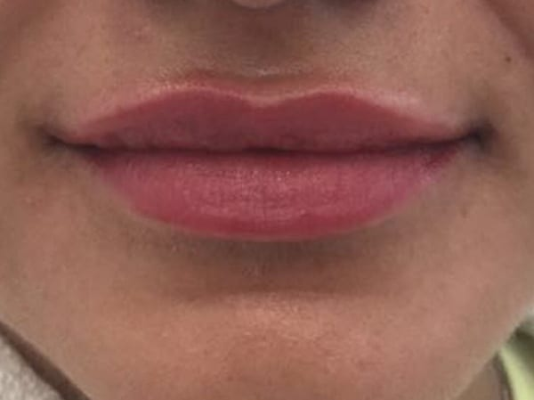 Dermal Fillers - Lips - After 04