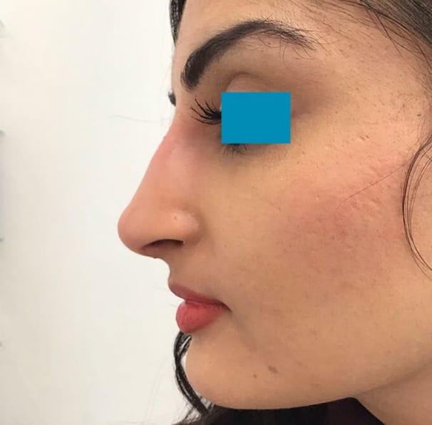 Dermal Fillers - Nose - After 01