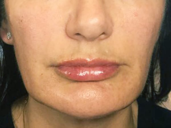 Dermal Fillers - Nasolabial Folds - After 01