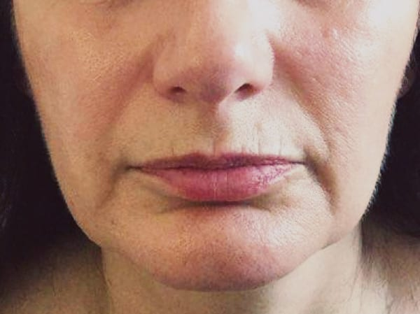 Dermal Fillers - Nasolabial Folds - Before 01