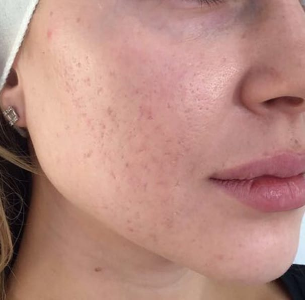 Laser Rosacea Treatment - After 01