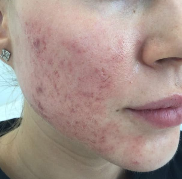Laser Rosacea Treatment - Before 01